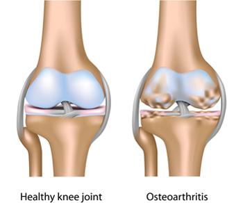 a csípőízületek 1. fokú deformáló artrózisa fájó hüvelykujj-kezelés