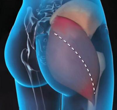 mit inni fájdalommal a csípőízület