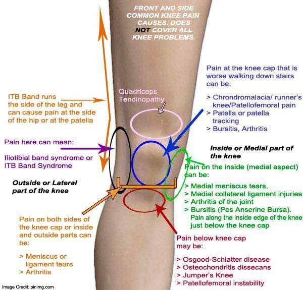 az 1. fokú kezelési fórum artrózisa