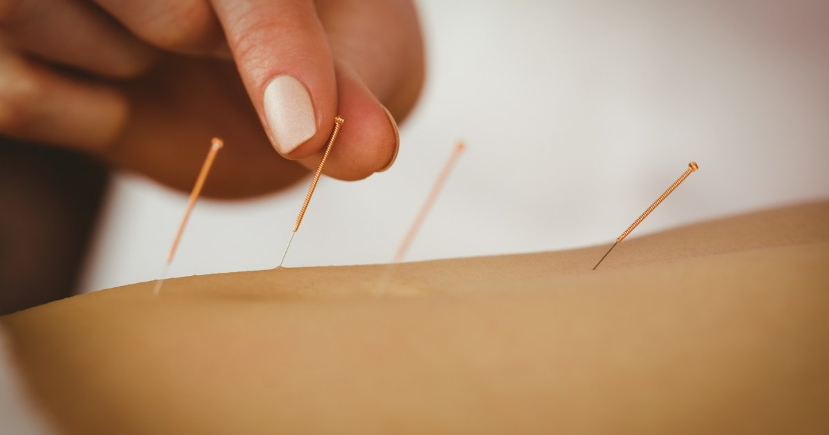 hogyan kezeljük a térdízületet dimexiddal hirtelen éles fájdalom a csípőízületben