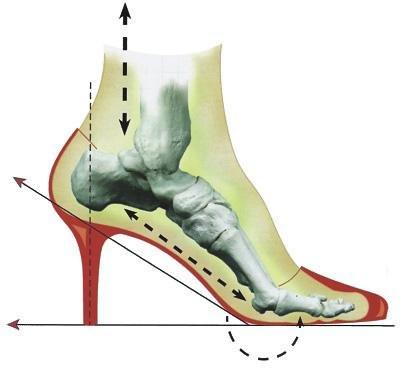 a lábujjak kis ízületeinek gyulladása a vállízület ízületi gyulladásának gyógyszere