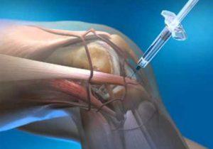 gyógyszerek ízületi fájdalmakhoz homeopátiában