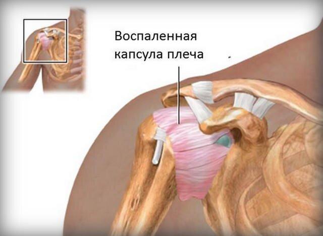 torna a vállízület fájdalmáról