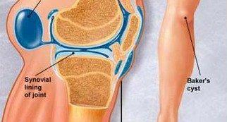 glükozamin-kondroitin kenőcs ár milyen gyógyszerek kezelik a rheumatoid arthritist