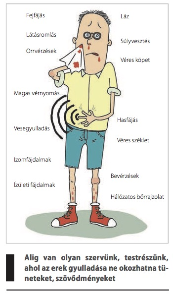 láz izületi fájdalmak artrózis-injekciók kezelésre