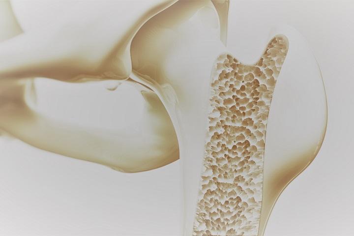 csípő-csontritkulás 3. fokozatú kezelés
