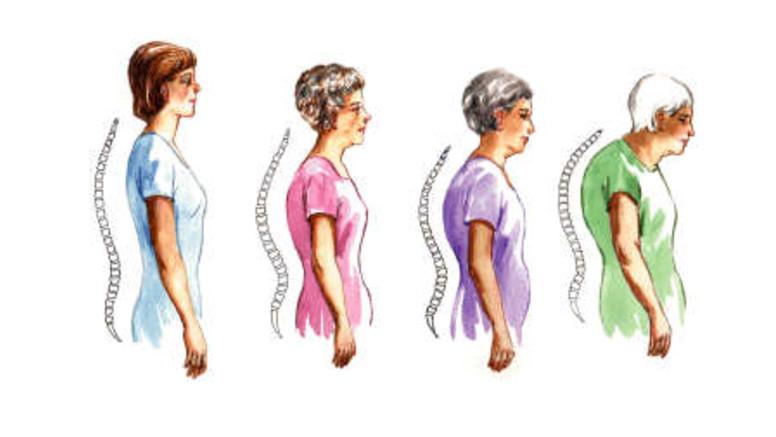 ízületi gyulladás ízületi osteoporosis kezelése