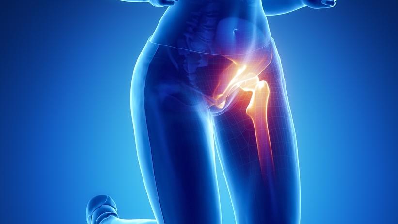 A csípőfájdalom okai és kezelése - Gyógytornácaremo.hu - A személyre szabott segítség