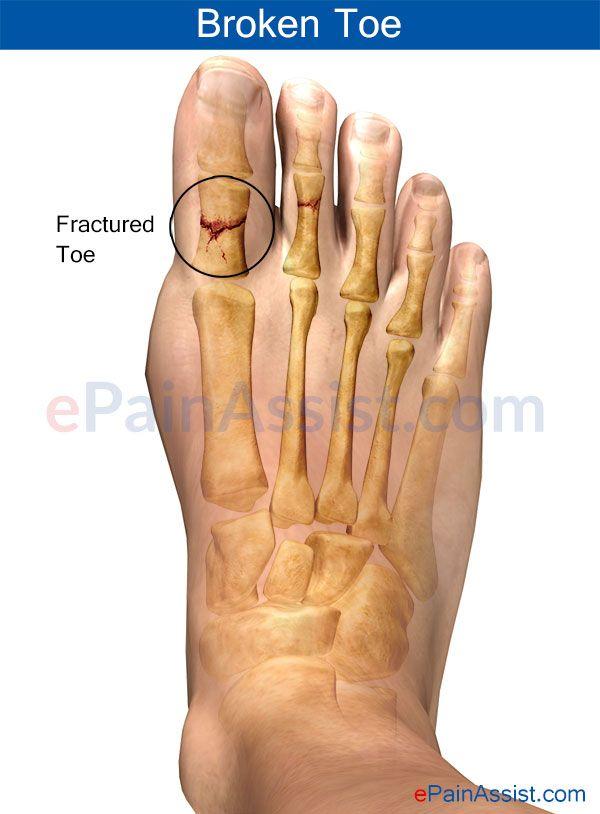 elsősegély a lábujjak ízületi gyulladásában