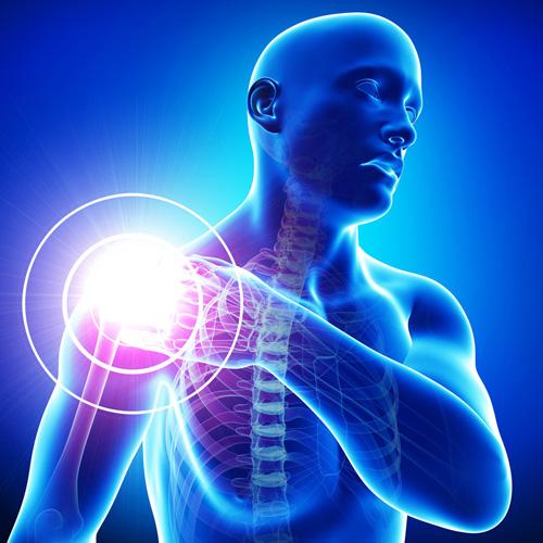 a vállízület gyulladása, mit kell tenni a súlyos ízületi fájdalom oka