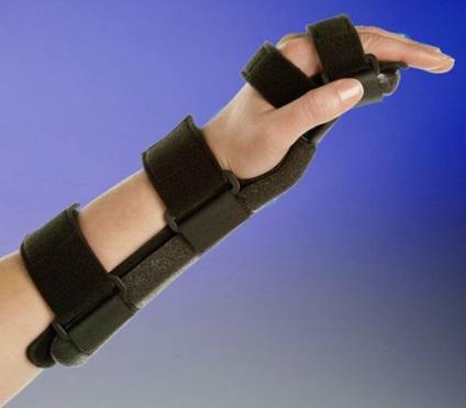 csukló-styloiditis kezelés