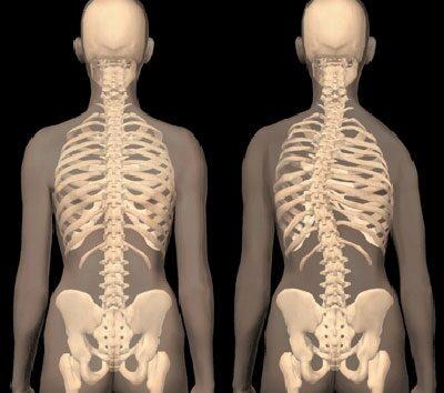 gyakorlat a csípőízület fájdalmára