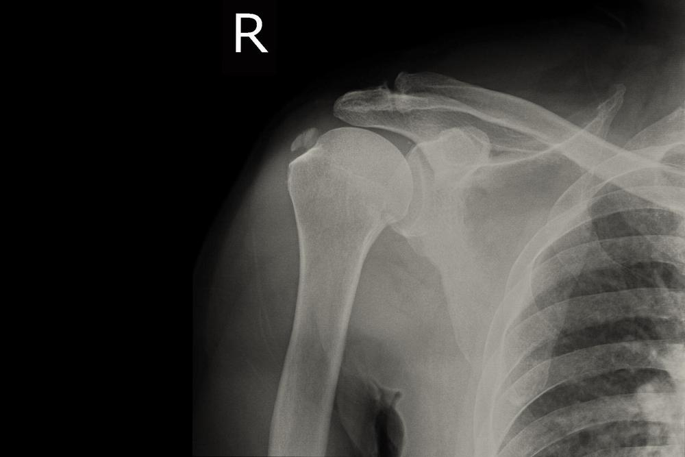 az első fokú vállízület kezelése sirdalud térd artrózisával