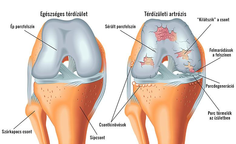 Teljes térdprotézis beültetés