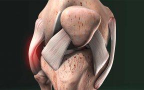 izomfájdalom a térdízület körül a jobb kéz gyűrűje fáj a középső ízület