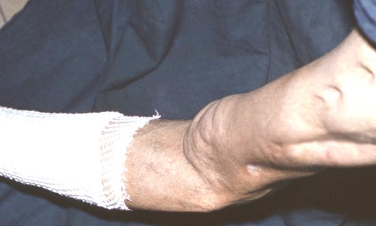 csípőfolyadék-kezelés a térdízület alflutop artrózisának kezelése