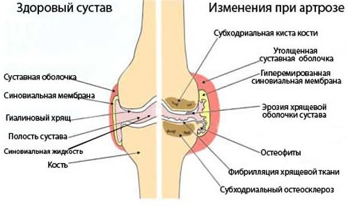 Mi a gonartrózis fok és hogyan kell kezelni? - Kezelés