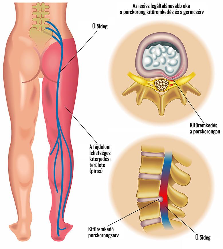 a bal oldali csípőízület fáj