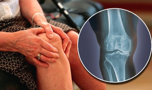 Vállízület - fájdalom a felkar emelésekor: okok, kezelés és megelőzés - Osteochondrosis -