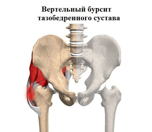 kenőcsök a csípőízület bursitisének kezelésére