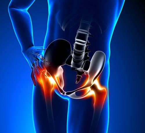 ízületi fájdalom a besugárzás után műtét utáni térd artritisz