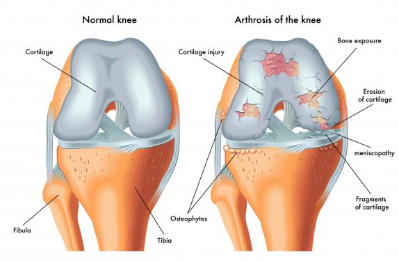 változás az ízületben artrózissal és ízületi gyulladással ízületi fájdalmak a kezek kezelésére