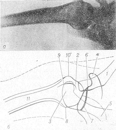 a mellkas gerincének nemcrovertebralis artrózisa a nyaki gerinc ízületei artrózisa