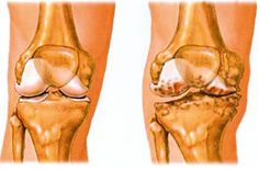 Az arthrózis konzervatív kezelési lehetőségei | PRP kezelés