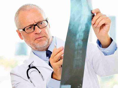 csípő gerincízületek íveinek ízületi gyulladása étrendi kezelés artrózis esetén