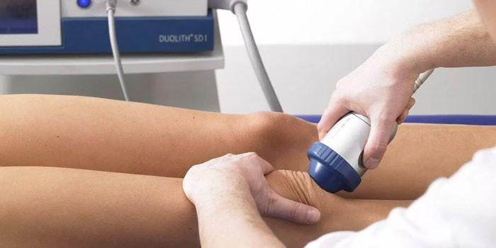 A vállízület osteoarthritis. Okok, kezelés, megelőzés