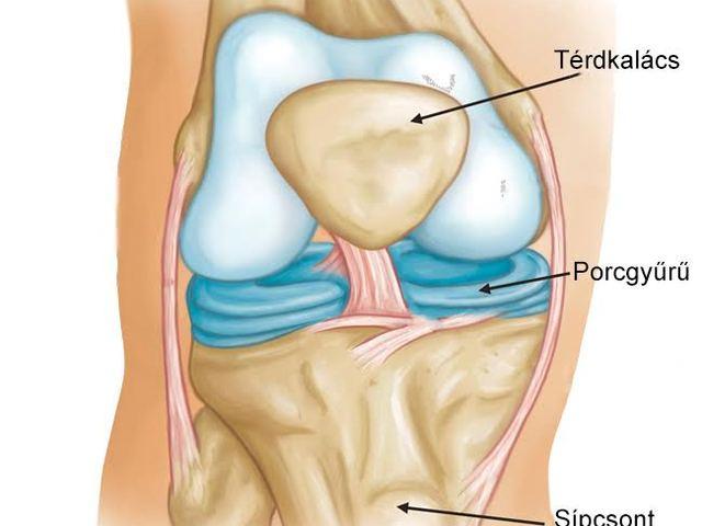 térdízületi kezelés spondyloarthritis csípőideg fájdalom