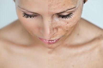 milyen kenőcs az ízületek kezelésére deformált vállízületi gyulladás