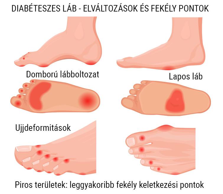 Diabéteszes láb kezelése - Cukorbetegközpont