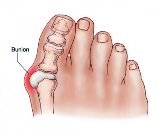 fáj a fájdalom a nagy lábujj alatt a könyökízület sarka fáj