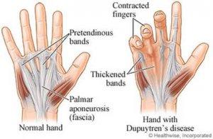 hajlító fájdalom a kéz ízületeiben