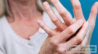 a térd ízületi gyulladásának oka