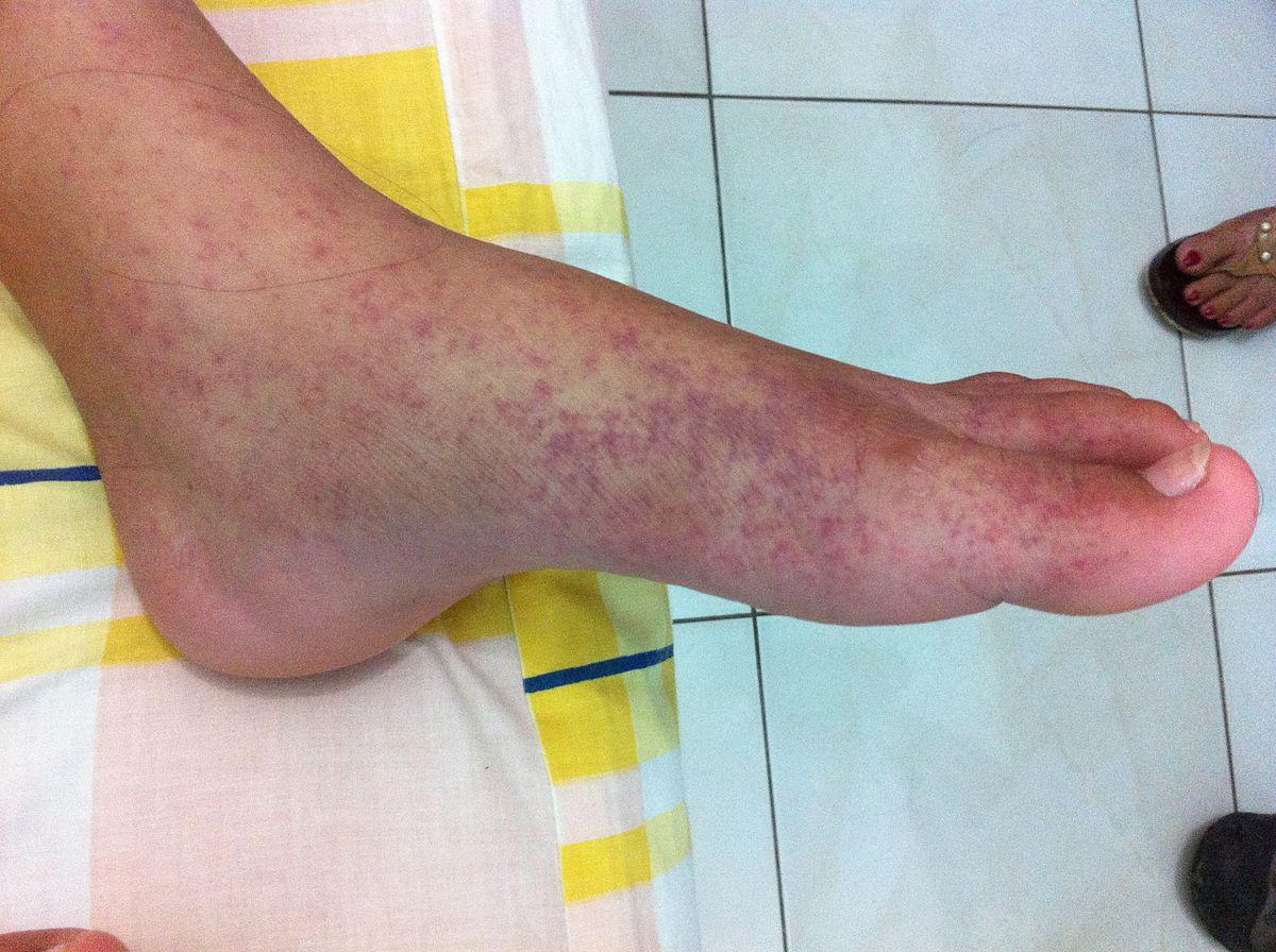 láz izületi fájdalmak kézízületi gyulladás tünetek kezelése