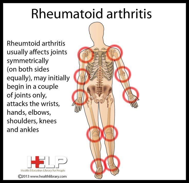 mit kezeli a rheumatoid arthritis az ízületek osteochondrozisának legjobb gyógyszere