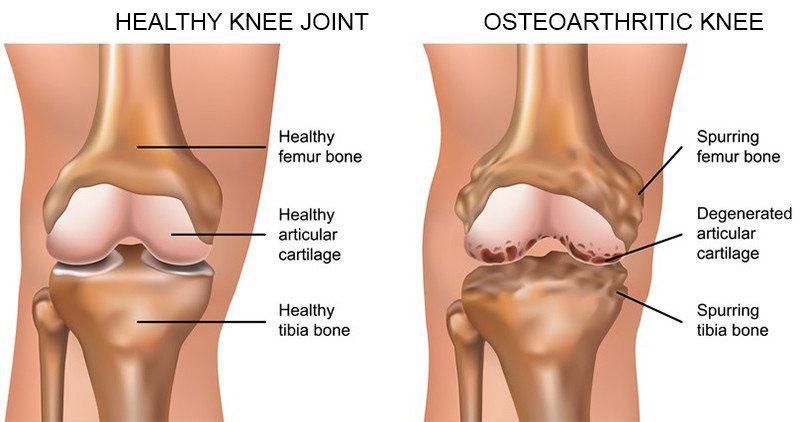 térdízületi fájdalom a hajlítás során hogyan kezeljük a térd gonartrózisát 1 fokkal