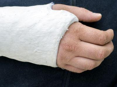 csukló fájdalom törés után