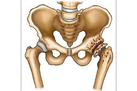 fájdalom az egész test ízületeiben nőknél elektromos készülékek artrózis kezelésére