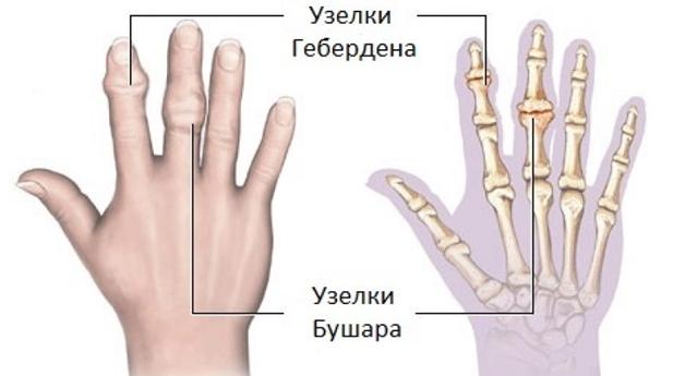 az ujjak falának deformáló artrózisának kezelése a könyökízület fájdalma és zsibbadása
