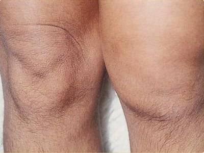A meniszkusz tünetei. A patella meniszkuszának kezelése. Mi a térd meniszkusza?