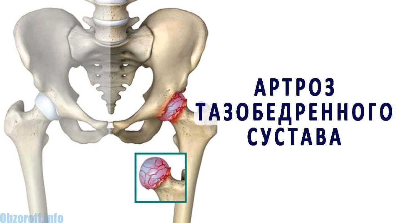a csípőízület artrózisának kezelésére szolgáló módszerek