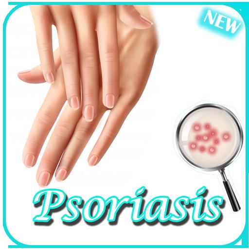 psoriasis arthrosis kezelés
