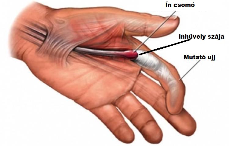 gyulladt ujjízület kezelése