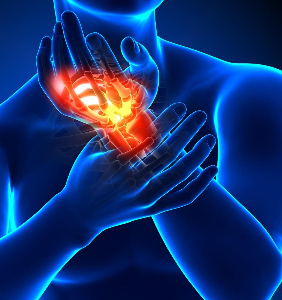fájdalom a kéz jobb ízületében ujjak köszvényes tünetei és kezelése