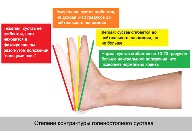 degeneratív-disztrófikus és gyulladásos ízületi betegségek