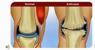 hogyan gyógyítható az artrózis összeroppant térdízületet