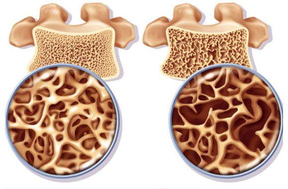 Gyulladás, fájdalom, csontritkulás – rizikófaktoroktól a kezelésig